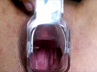 Cervix view and pussy gaping